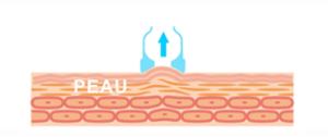 drainage lymphatique