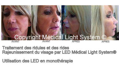Traitement des rides et des ridules 2 par Led Médical Light System ®