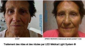 Traitement des rides et des ridules par Led Médical Light System ®