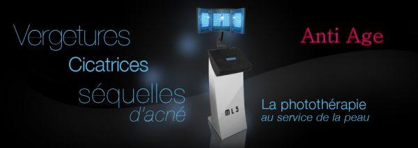 Exemples de soins effectués avec notre appareil LED Médical Light System MLS