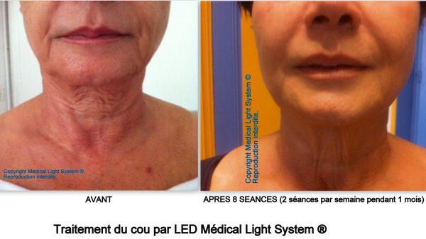 Traitement du raffermissement et du rajeunissement du cou par LED Médical Light System ®