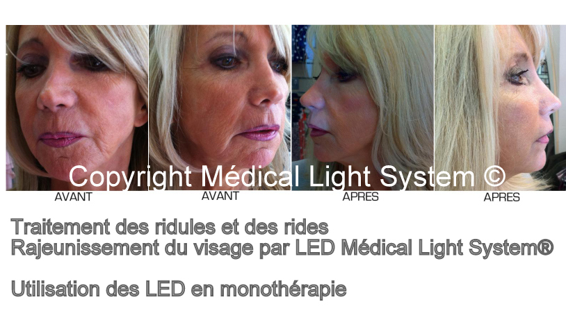 Traitement des rides et des ridules 2 par Led Médical Light System ®